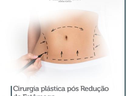 Cirurgia plástica após Gastroplastia