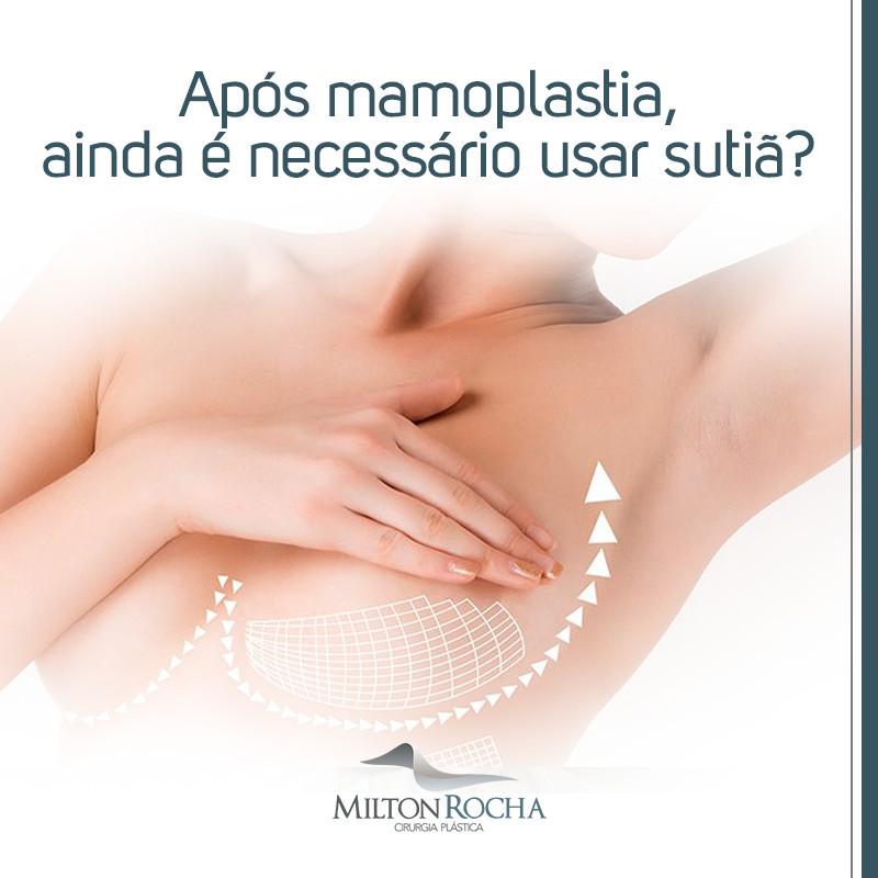 Após a mamoplastia ainda é necessário usar sutiã?