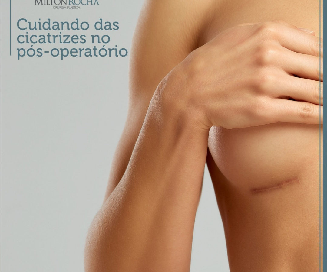 Cuidando das cicatrizes no pós-operatório