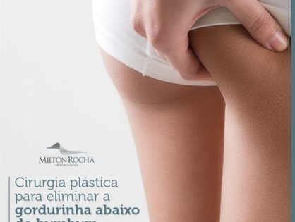 Cirurgia Plástica Recife - Cirurgia plástica para eliminar a gordurinha abaixo do bumbum