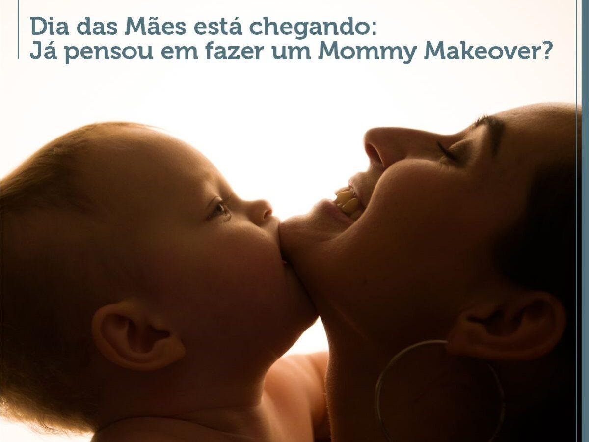 Cirurgia Plástica Recife - Dia das Mães está chegando: Já pensou em um Mommy Makeover?
