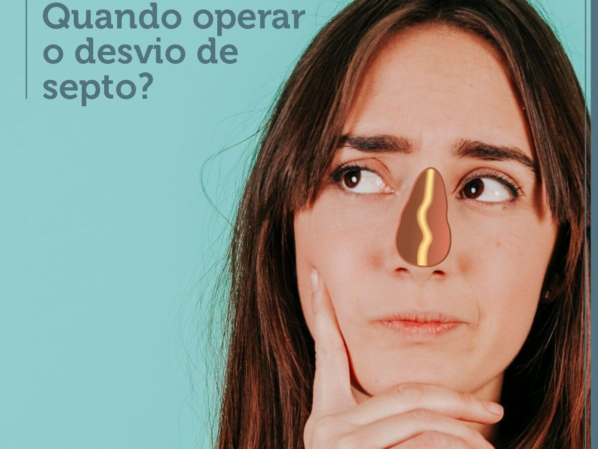 Cirurgia Plástica Recife | Quando operar o desvio de septo?