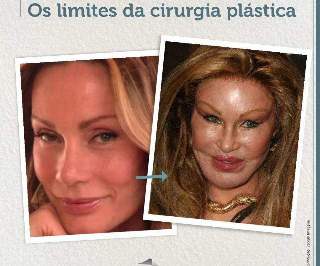 Cirurgia Plástica Recife | Os Limites da cirurgia plástica
