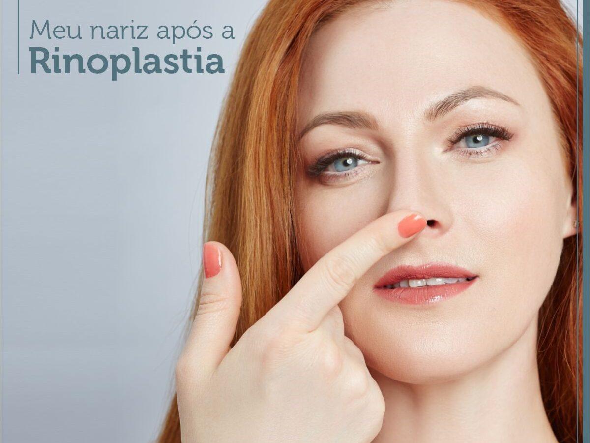 Meu nariz após a Rinoplastia