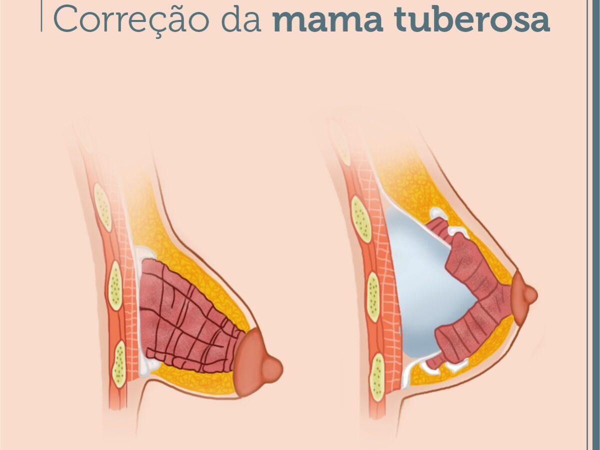 Cirurgia Plástica Recife - Correção da mama tuberosa