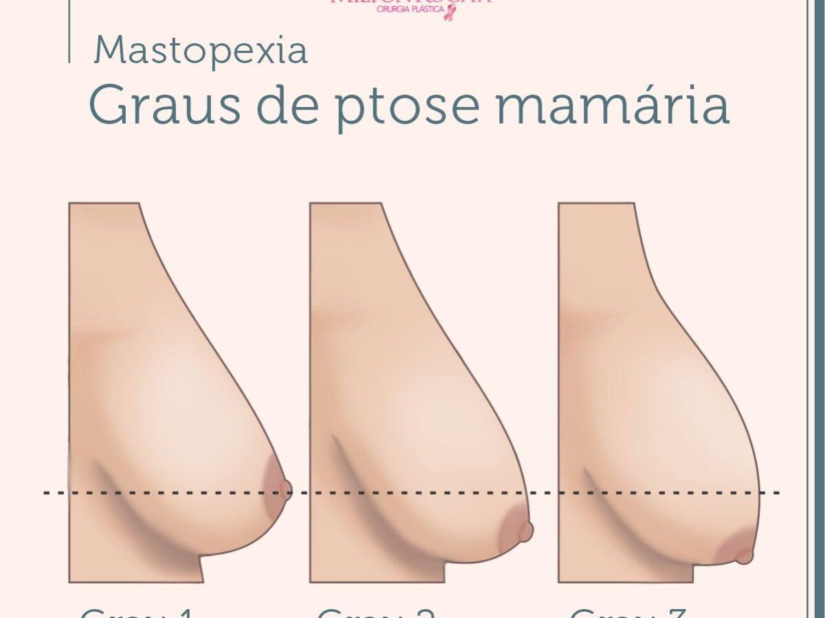 Cirurgia Plástica Recife - Graus de ptose mamária
