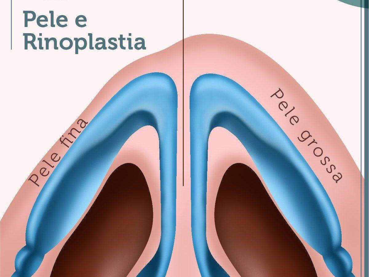 Cirurgia Plástica Recife - Pele e Rinoplastia