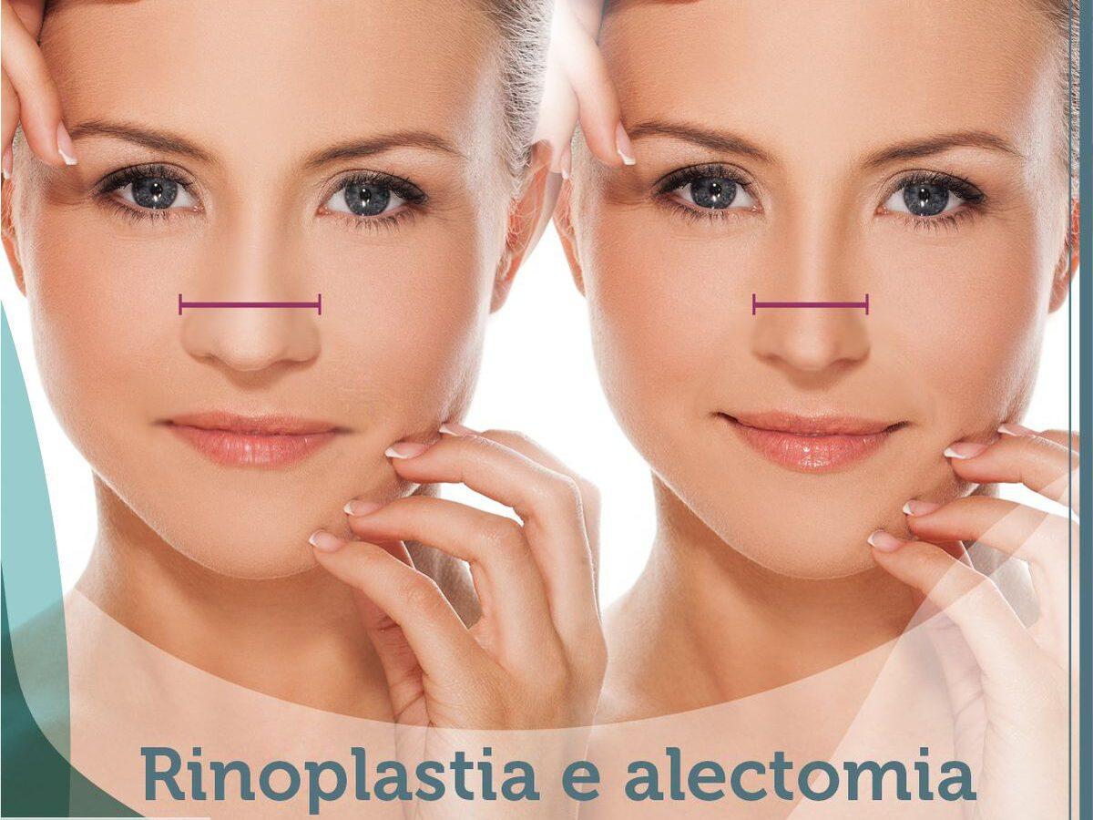 Cirurgia Plástia Recife - Rinoplastia e Alectomia