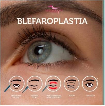 Cirurgia Plástica Recife - BLEFAROPLASTIA