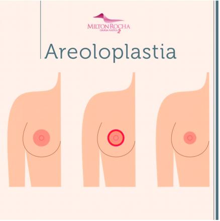 Cirurgia Plástica Recife - Areoloplastia