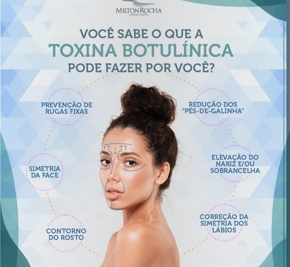 Cirurgia Plástica Recife - Você sabe o que a toxina butolinica pode fazer por você?