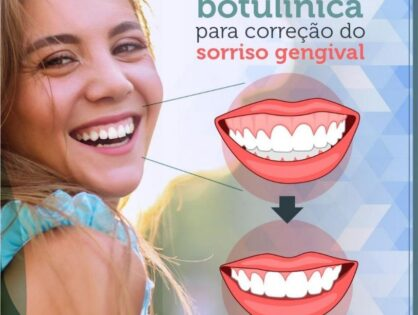 Cirurgia Plástica Recife - Toxina Butolínica para correção do sorriso gengival