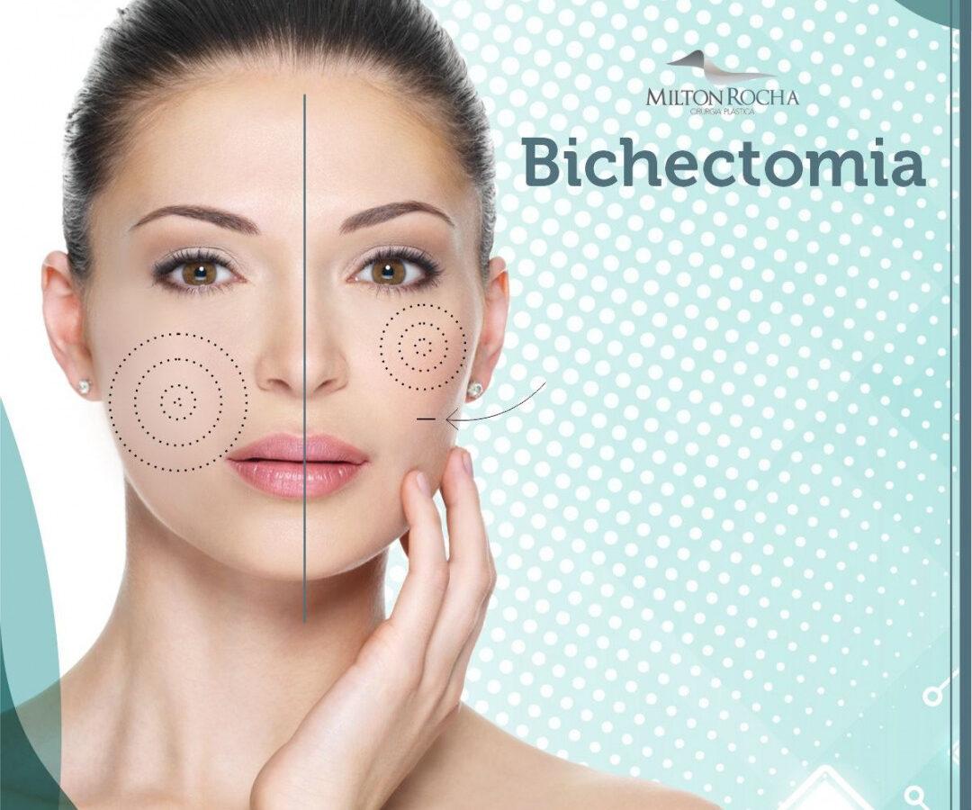 Cirurgia Plástica Recife - Bichectomia