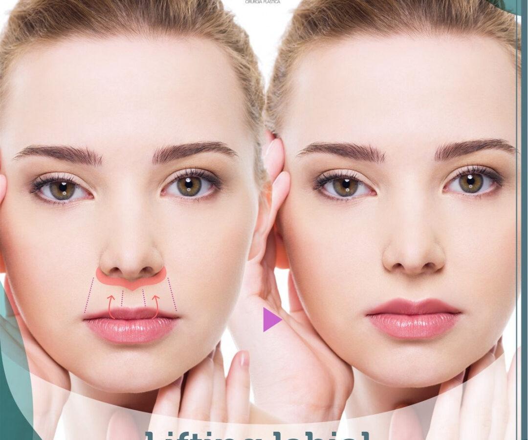 Cirurgia Plástica Recife - Lifting labial