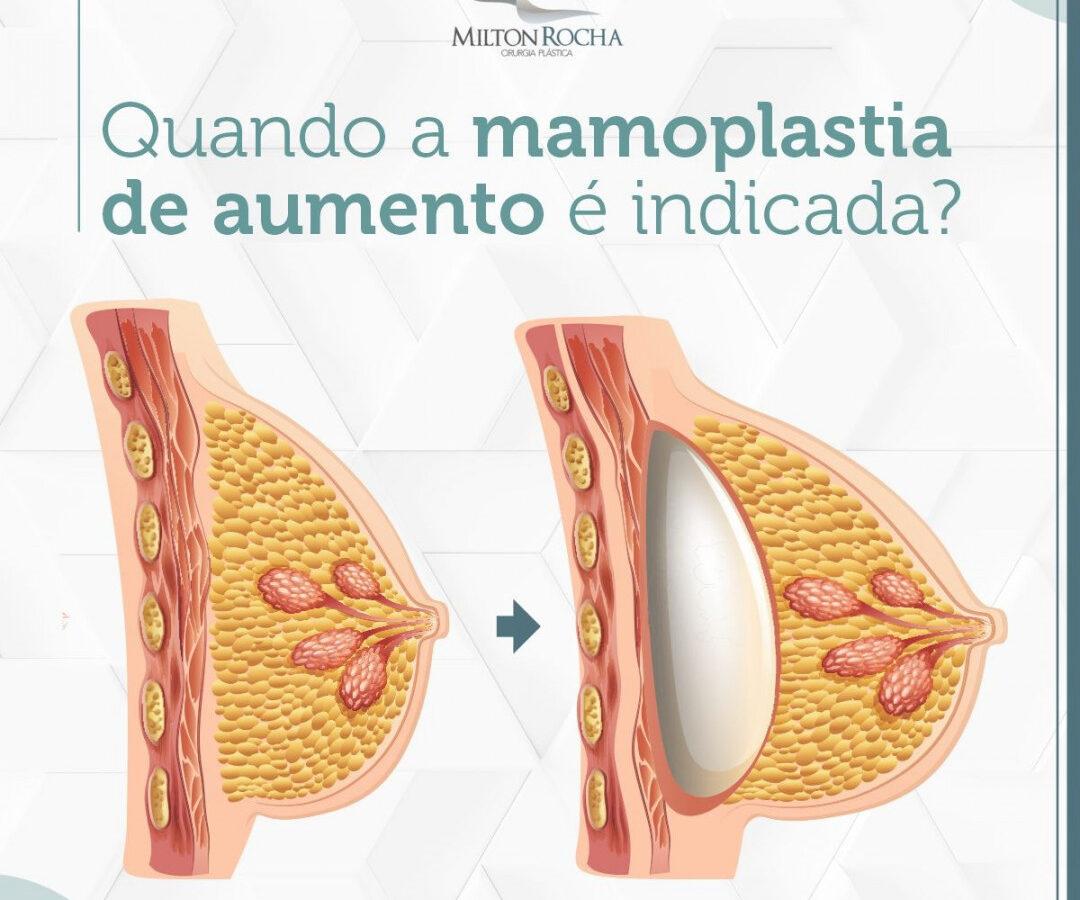 Cirurgia Plástica Recife - Quando a mamoplastica de aumento é indicada?