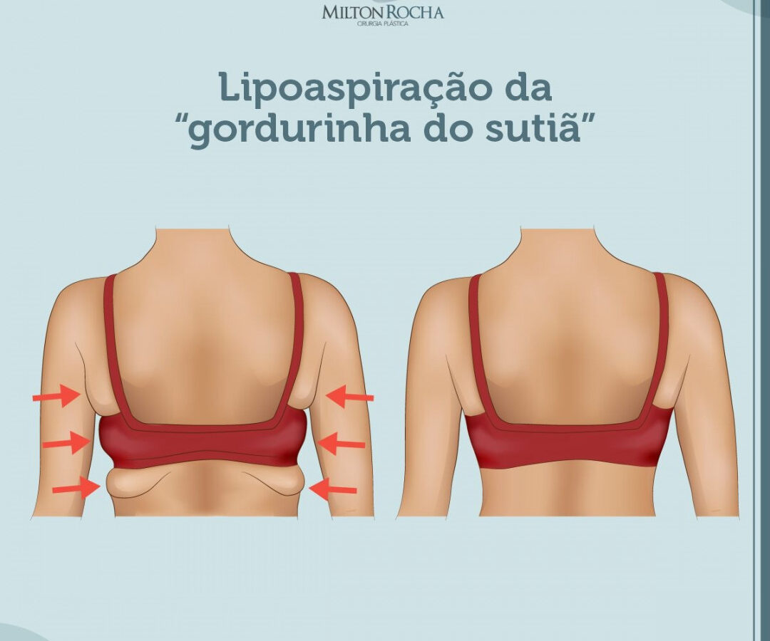 """Cirurgia Plástica Recife - Lipoaspiração da """"gordurinha do sutiã"""""""