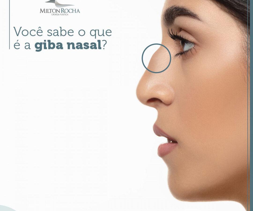 Cirurgia Plástica Recife - Você sabe o que é a GIBA nasal?
