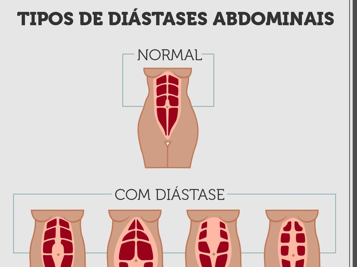 Cirurgia Plástica Recife - Tipos de diástases abdominais
