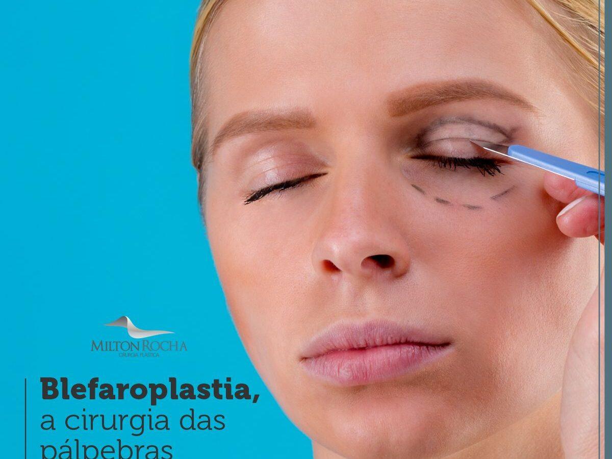 Cirurgia Plástica Recife - Blefaroplastia, a cirurgia das pálpebras