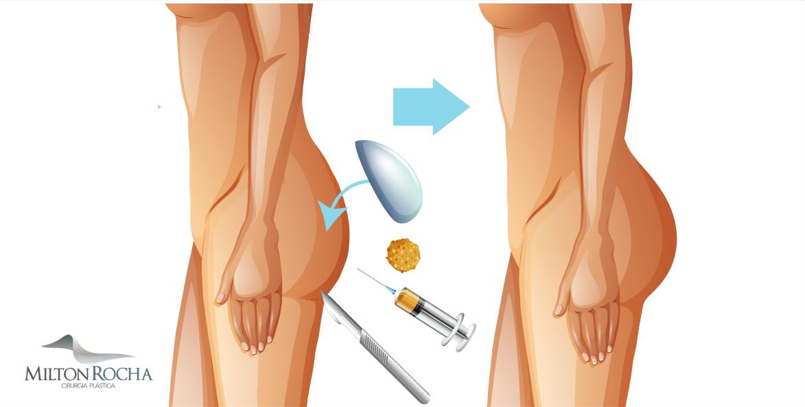Cirurgia Plástica Recife - GLUTEOPLASTIA X LIPOENXERTIA GLUTÉA